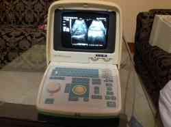 Ultrasound Honda Model: hs 2000 Convex Scanner with Convex and Sector Probe
