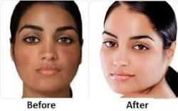 Skin Lightening & Brightening IV Infusion Pills For Sale  +27793007029