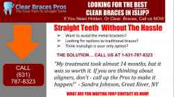 Affordable Discount Invisalign Clear Braces Cost Islip NY