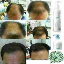 Hair loss/ balding problems? Try Atomy.