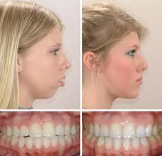 Cost of Orthognathic Surgery  India