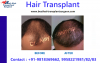 Get FUE Hair Transplant at Affordable Cost