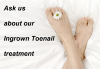 Ingrown Toenail Therapy San Diego